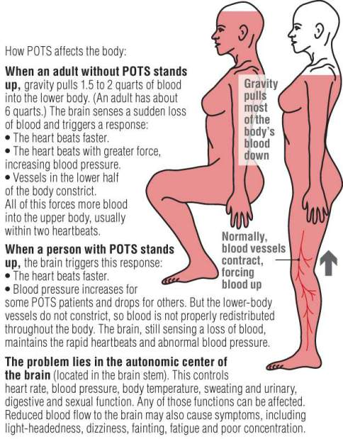 14b18f2c57 If you have recently been diagnosed with POTS, your head is probably  spinning—quite literally! The term Postural Orthostatic Tachycardia Syndrome  (POTS) is ...
