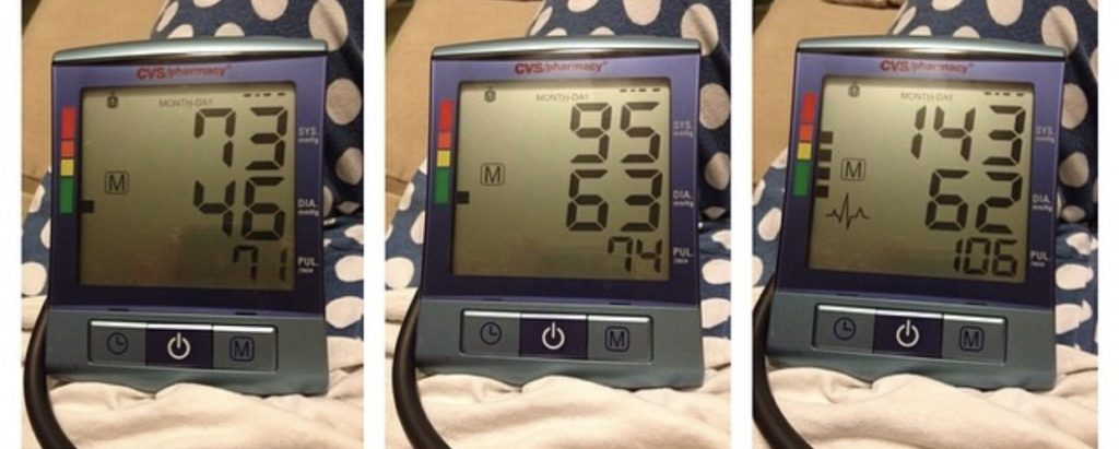 Diagnosing And Managing Dysautonomia With Blood Pressure